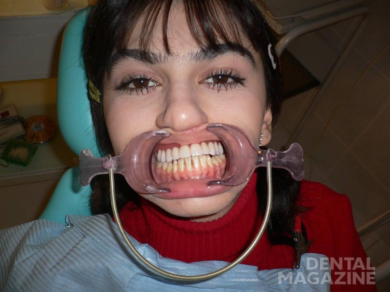 Рис. 4. Косметический нейлоновый протез в полости рта пациентки.