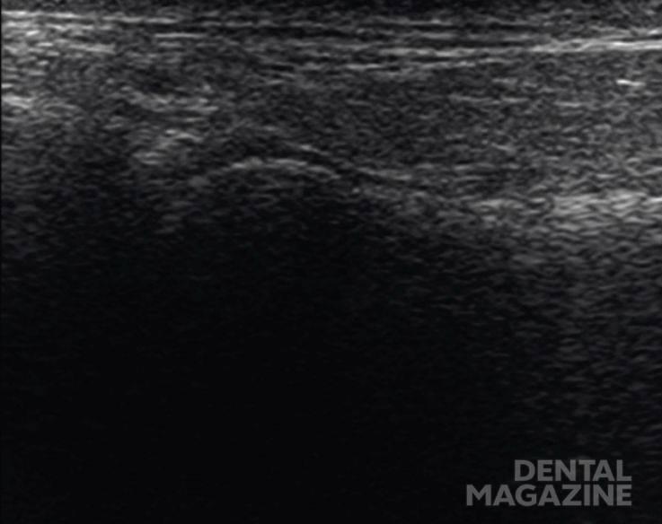 Рис. 5. Фронтальный скан кзади от головки. КЖ — кожа, подкожно-жировая клетчатка, поверхностная мышечно-апоневротическая система. ОКУ — околоушная слюнная железа. Д з.-лат. — заднелатеральный фрагмент суставного диска. Кап. з.-лат. — заднелатеральный фрагмент капсулы. КМП з.-лат. — заднелатеральное капсульно-мыщелковое пространство. Г з.-лат. — заднелатеральный фрагмент головки мыщелкового отростка. Бил. з. — биламинарная зона. НЧ зад. К В — задний край ветви нижней челюсти.