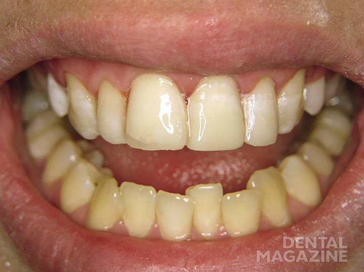 Рис. 8. Окончательный вид реставраций 11, 21 и 22 зубов.