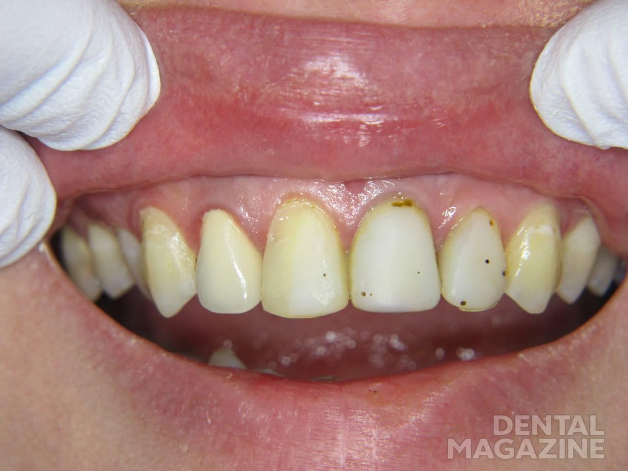 Рис. 1. Зубы 1.1, 2.1 и 2.2: исходная ситуация.