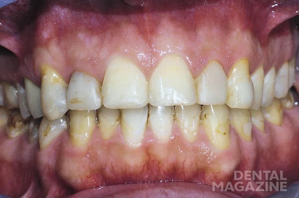 Рис. 11. Внешний вид реставраций из Equia Fil на зубах 23, 35, 34, 32, 31, 41 и 43 через 2 года после лечения : дефекты отсутствуют.