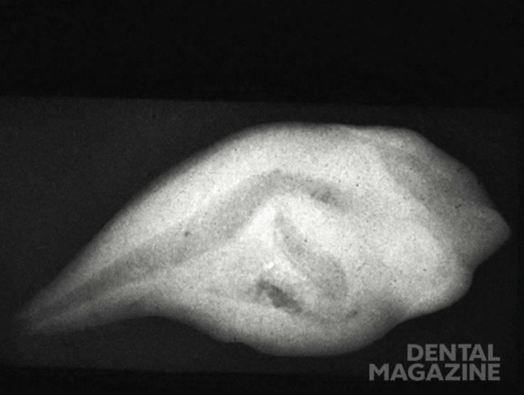 Рис. 8а. Аномалия dens invaginatus III типа по Oehlers (1957). Зуб значительно деформирован. Имеется латеральное сообщение ивагинации с пародонтом.
