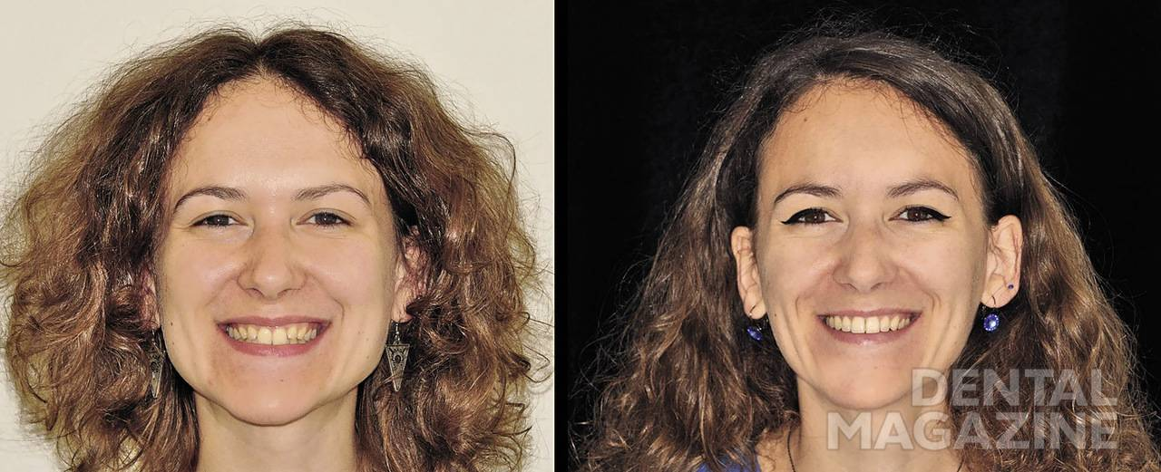 Рис. 2. Фотографии лица с улыбкой. Благодаря контролируемому расширению на индивидуальных дугах достигнута более широкая и гармоничная дуга улыбки.