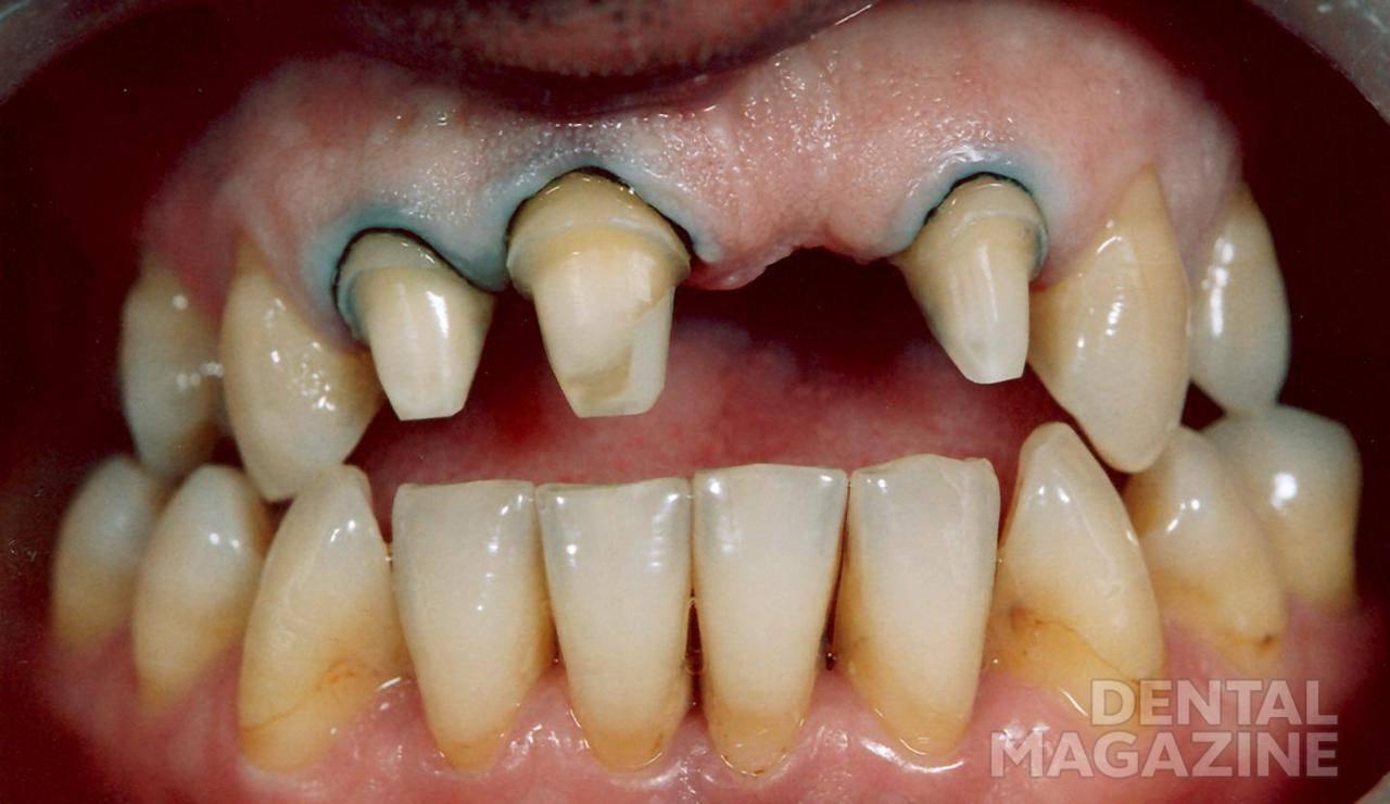 Рис. 9. Пациент И. после препарирования зубов. Придесневые уступы сформированы ниже уровня десневого края.