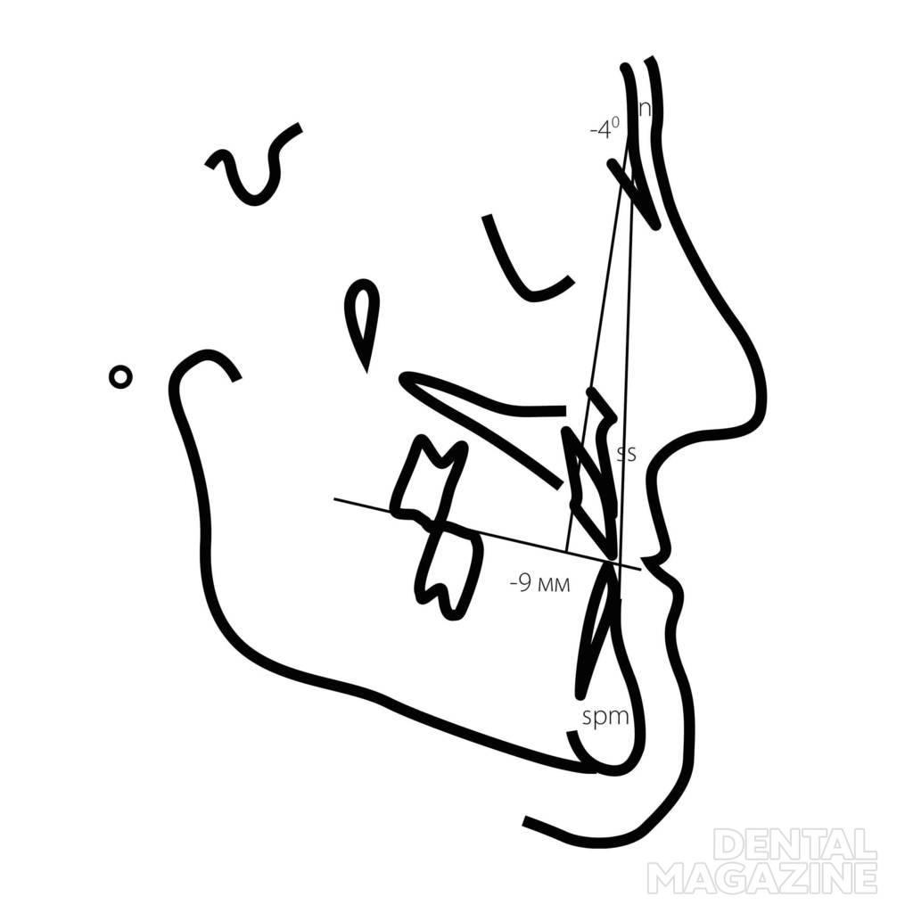 Рис. 11. Степени выраженности морфологических признаков ЗЧЛА в сагиттальном направлении для пациентов с дистальным (а — в) и мезиальным (г — е) соотношением зубных рядов: 1-я степень, 2-я степень, 3-я степень.