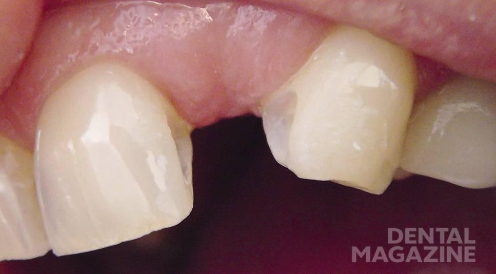 Рис. 5. На дистальной поверхности 21 и мезиальной 23 отпрепарированы площадки для адгезивного протеза.