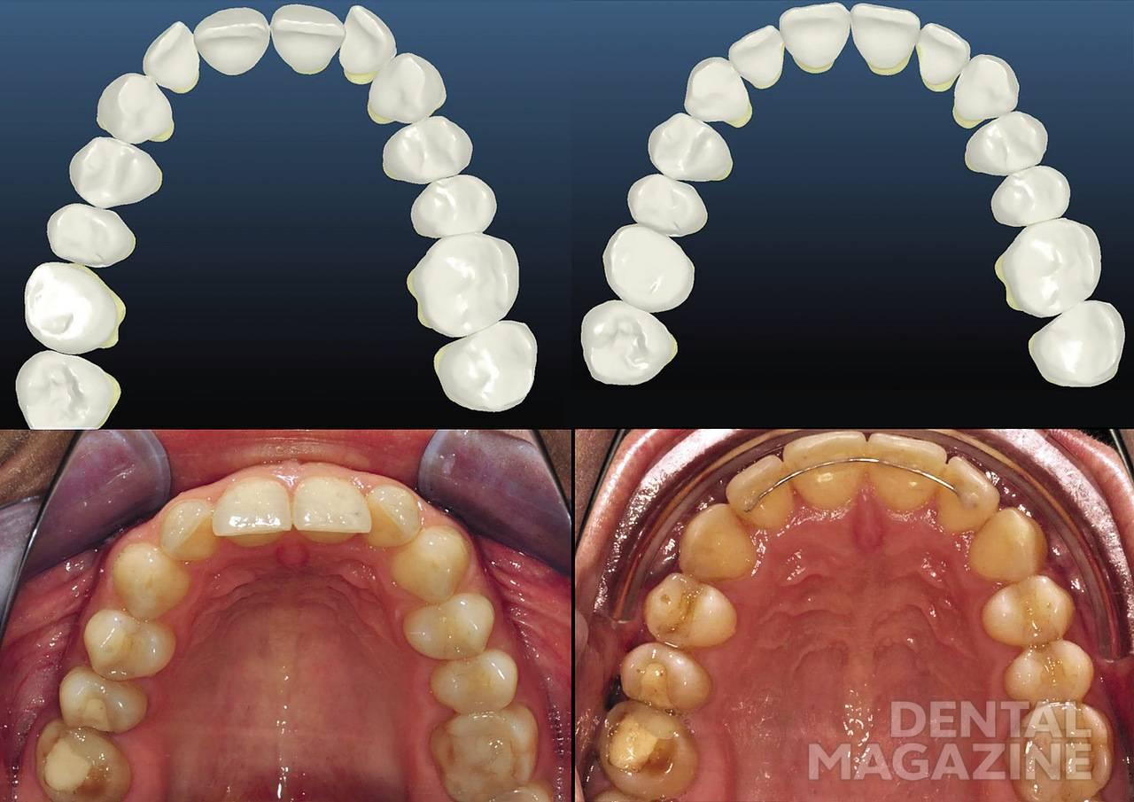 Рис. 7. Аксиальные реформаты КЛКТ на расстоянии 3 и 6 мм от цементно-эмалевого соединения центрального резца демонстрируют наличие кости вестибулярно от зубов (В/Ч).