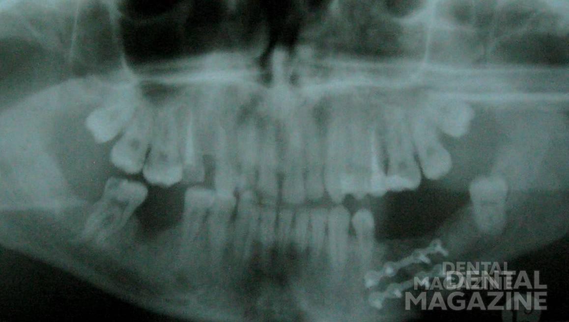 Рис. 4. Двусторонний перелом нижней челюсти. Осуществлена иммобилизация с помощью остеосинтеза и брекет-фиксаторов.
