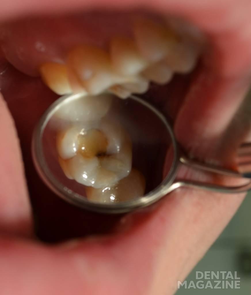 Рис. 1. Постоянная пломба на жевательной поверхности зуба 26 с нарушением краевого прилегания.