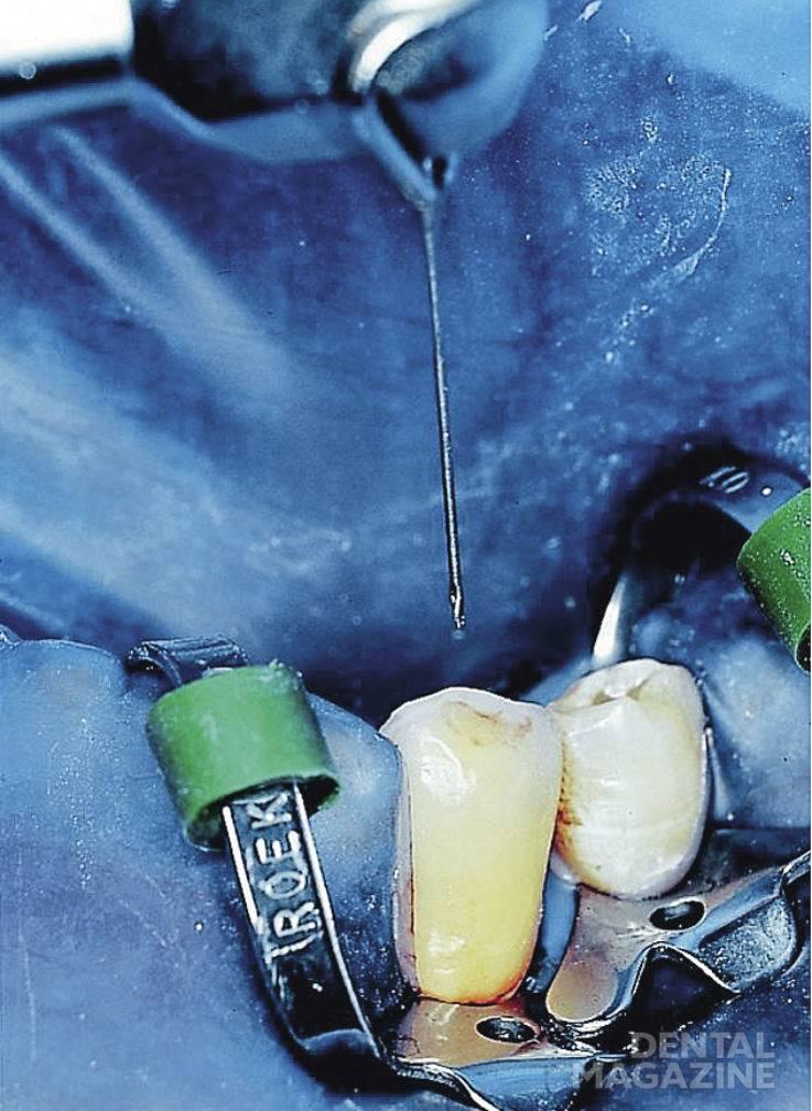 Рис. 2. Проведено вскрытие полости зуба. Коронковая часть корневого канала расширена при помощи боров «Гейтс-Глидден» до апикальной трети (техника step-down).