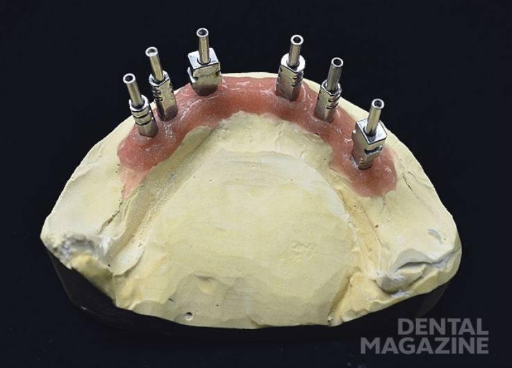 Рис. 2. Рабочие модели верхней и нижней челюстей с установленными имплантатами.