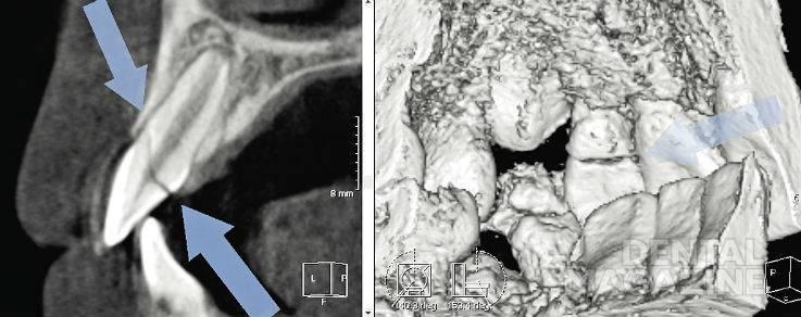 Рис. 2. КТ, визуализация зуба 22, сагиттальный реформат и объемный рендеринг; полный коронко-коронковый перелом в пределах эмали, дентина, пульпы и цемента.