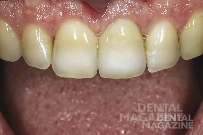 Рис. 13. Боковой и фронтальный виды готовой коронки, зафиксированной в полости рта, демонстрируют полную цветовую гармонию.