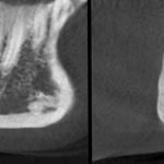 КЛКТ. Сагиттальный и коронарный реформаты переднего отдела нижней челюсти. Канал соприкасается с кортикальной частью кости (красная стрелка — резцовая петля) (рис. 4)