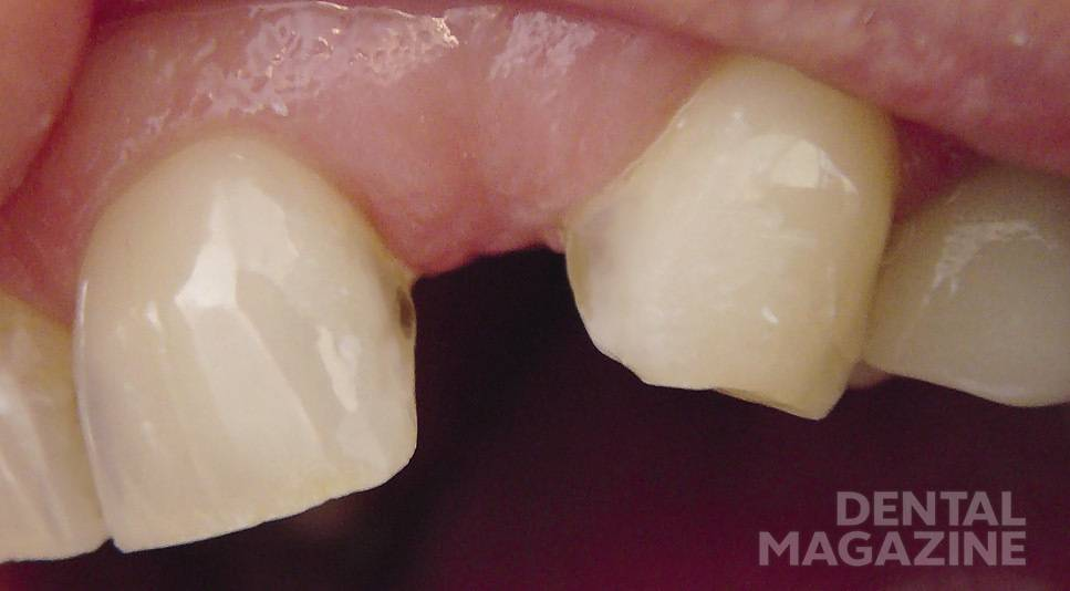 Рис. 1. Одиночный включенный дефект зубного ряда: отсутствует 22 зуб, 23 зуб стерт по режущему краю, смещен в мезиальную сторону.