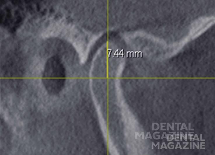 Рис. 2. Измерение высоты головки нижней челюсти.