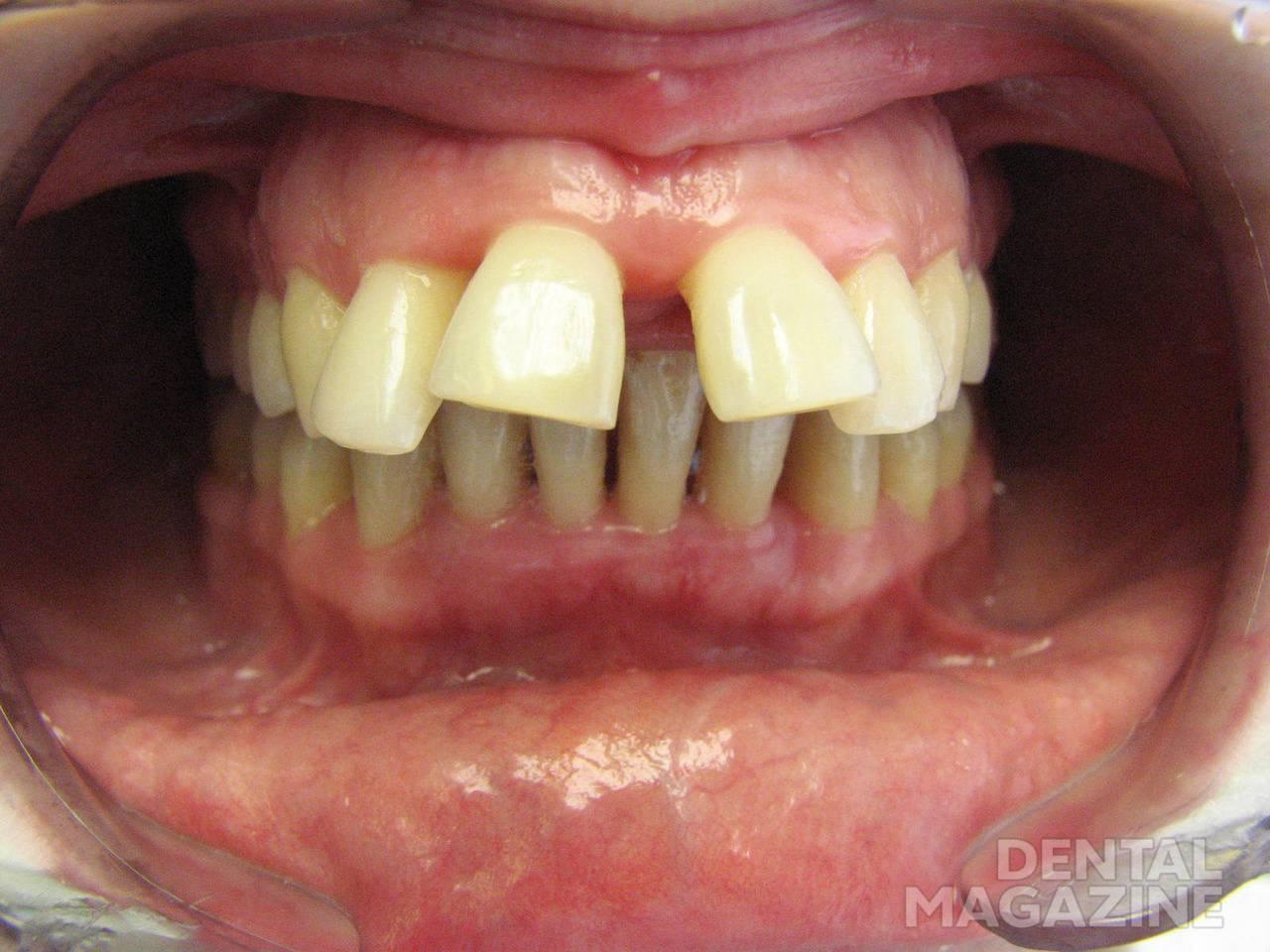 Рис. 7. Агрессивный пародонтит у пациентки 22 лет, выраженная протрузия передней группы зубов на верхней челюсти.