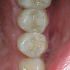 Зубы 2.4 и 2.5: окончательный вид реставраций (рис. 11)