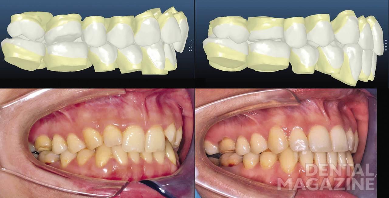 Рис. 5. Внутриротовые фотографии правые латеральные вместе с виртуальным сетапом. Можно оценить исправление вестибулярного наклона зубов, плотные фиссурно-бугорковые контакты. Планируется проведение протезирования в боковых отделах, с этой целью оставлено 1,5 мм в области вторых моляров.