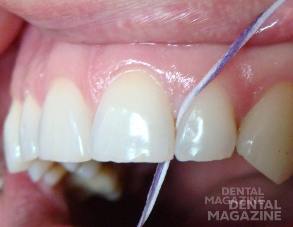 Использование зубной нити в межзубном промежутке. Рис. 2.