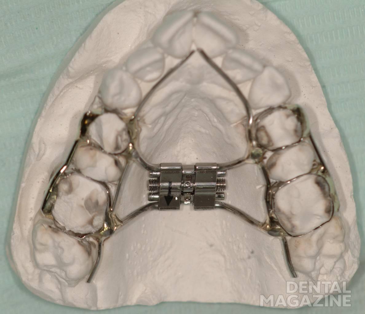 Рис. 6. Стандартный дистрактор верхней челюсти, зафиксированный в области зубного ряда.