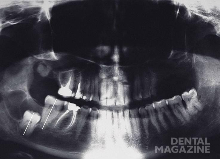 Рис. 3. Ретенция 48 зуба, наличие кисты.