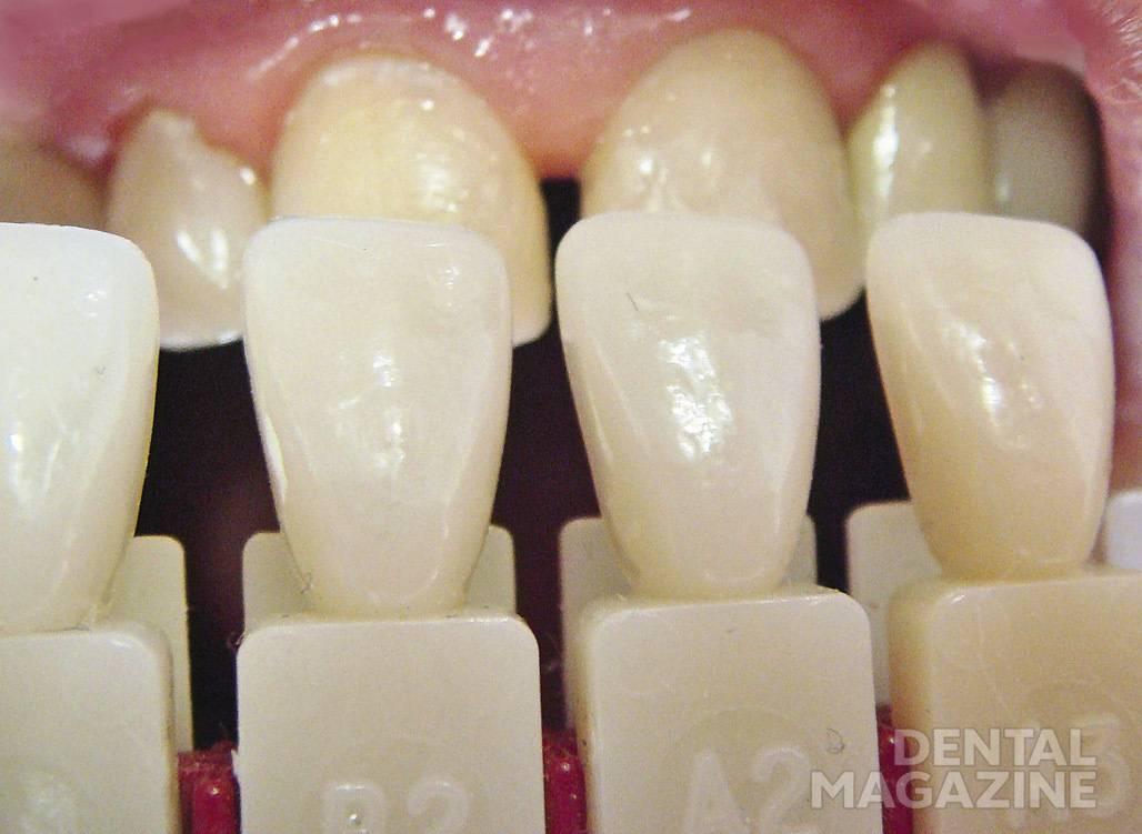 Рис. 11. Определен цвет зубов.