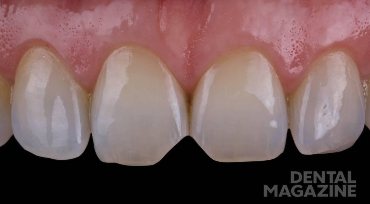 Рис. 2. Зубы имеют поверхность с минимальным микрорельефом.