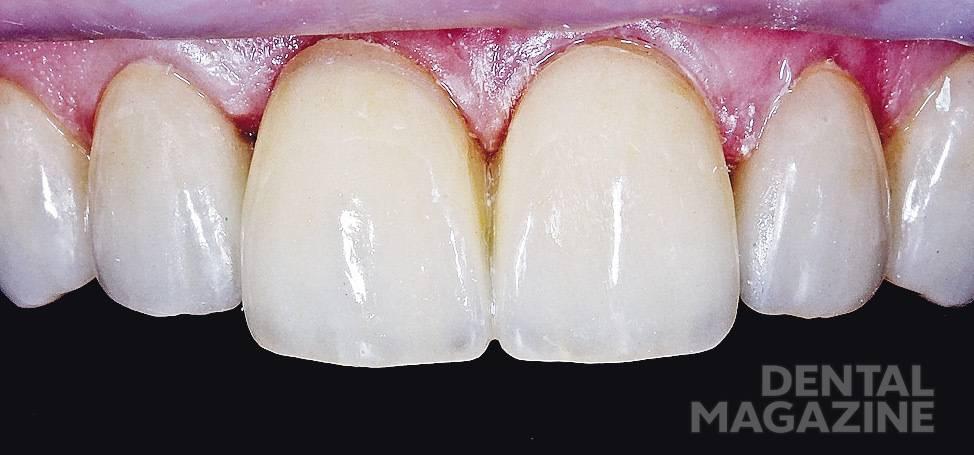 Рис. 15. Виниры зафиксированы на жидкий композит X-flow® (Dentsply), оттенок А2.