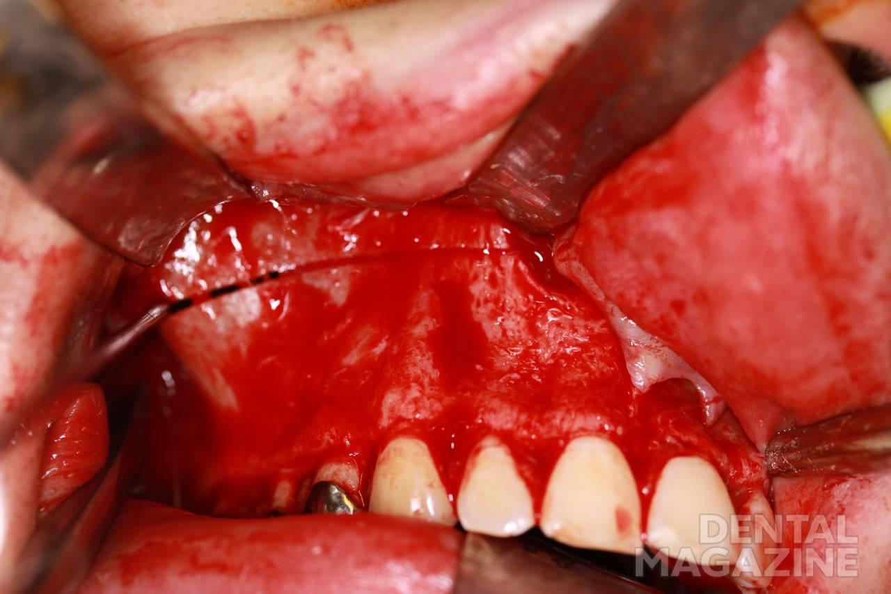 Рис. 7. Этап горизонтальной остеотомии верхней челюсти.