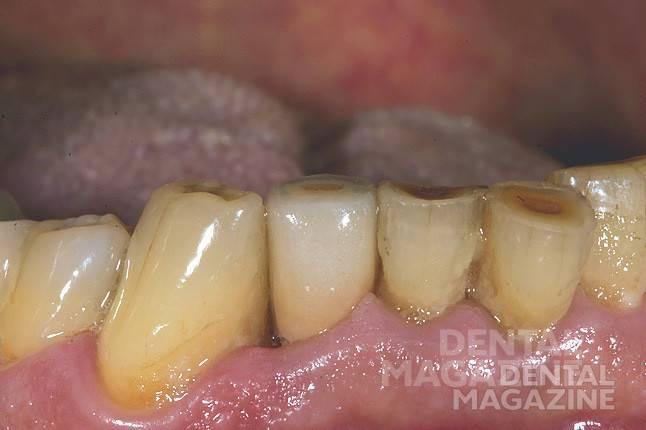 Рис. 14. Ситуация до препарирования зуба 26.