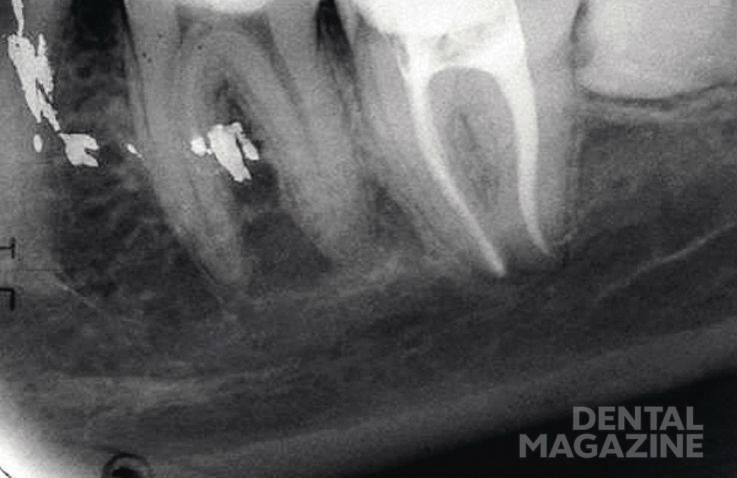Рис. 3б. Зуб 3.7, Ds: хронический гангренозный пульпит 3.7 (корневые каналы в форме песочных часов): спустя 6 мес. после лечения.