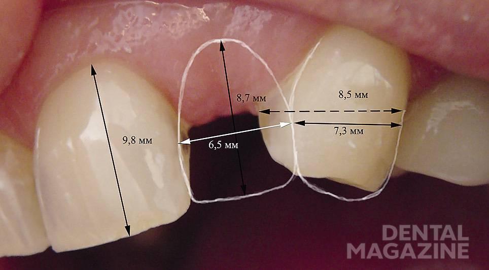 Рис. 2. Планирование конструкции: измерены вертикальные и горизонтальные размеры 21, 22 и 23 зубов.