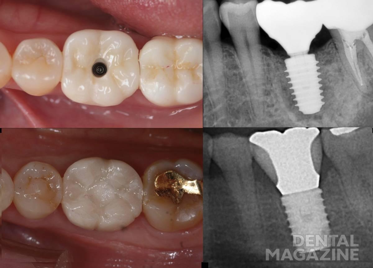 Рис. 5. Сравнение обычного имплантата (диаметр 6 мм) и имплантата AnyRidge (диаметр 6 мм).