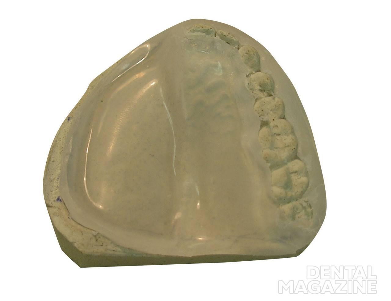 Рис. 8. Резекционная пластина из нейлона с гибким непрерывным кламмером на интактный зубной ряд.