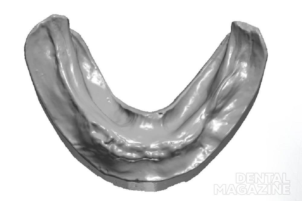 Скан гипсовой модели нижней челюсти в формате STL. Рис. 2.